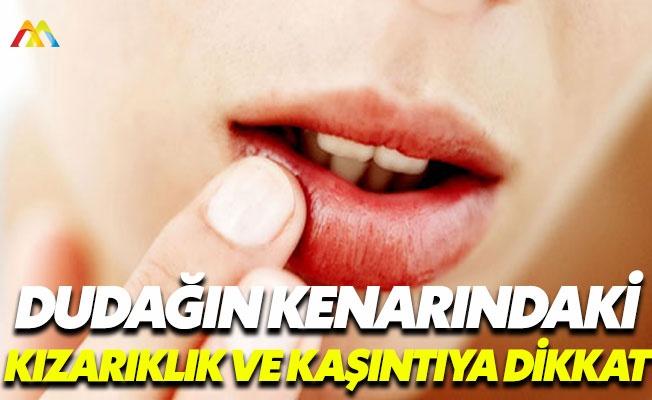 Dil ve dudakta şişme besin alerjisinin belirtisi