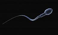 Sperm Sağlığını Korumak İçin Öneriler ve Uyarılar