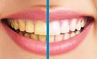 Dişlerinizin Sararmasına Doğal Çözüm